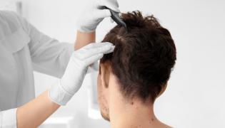 Badanie skóry głowy