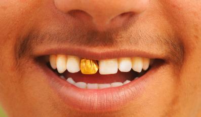 Niezależnie od tego czy masz złoty, srebrny czy platynowy uśmiech - stoisz na przegranej pozycji. Kobiety akceptują tylko białe i zdrowe zęby...
