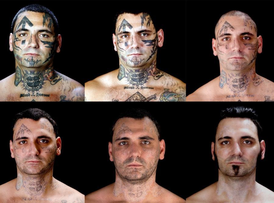 Nawrócony nazista zrywa z przeszłością i usuwa tatuaże - wszystko to dla rodziny!