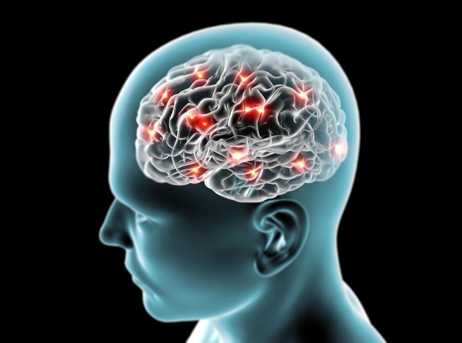 Udar mózgu a półpasiec