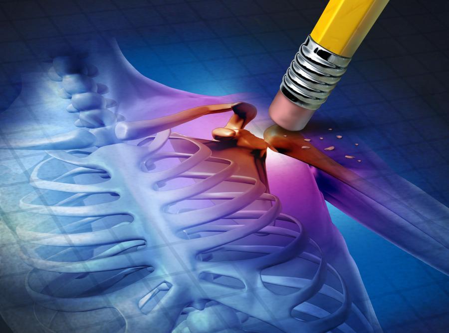 Osteoporoza atakuje coraz więcej osób