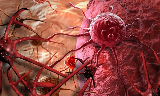 Rak płuc - najczęstszy nowotwór złośliwy: objawy, diagnoza, leczenie