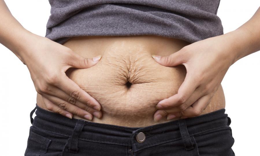Rozstępy na brzuchu