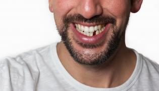 Mężczyzna bez zęba