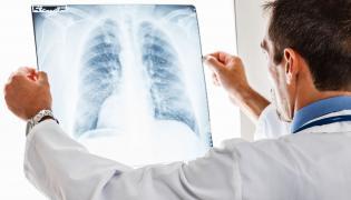 Lekarz ogląda zdjęcie rentgenowskie płuc